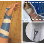 My wrist story